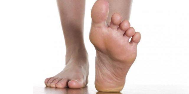 ¿Qué es el pie de atleta y cómo tratarlo?